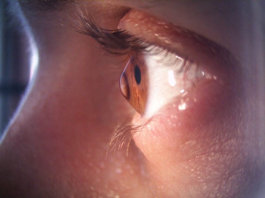 Keratokonus hastalığının durdurulmasında en etkin ve güvenilir yöntem ise korneal çapraz bağlama (cross-linking) tedavisidir.