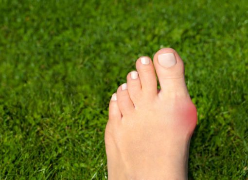 Ayak başparmağının eğikliği olarak bilinen Halluks Valgus yani ayak başparmak çıkıntısı hastalığı, genellikle estetik bir problem gibi düşünülse de, ağrılı hale geldiğinde mutlaka dikkat edilmesi gereken bir sorun olarak tanımlanıyor. Genetik geçişli olabilen bu hastalık dar, topuklu ya da rahat olmayan ayakkabılar giyilmesi sebebiyle zaman içerisinde ilerleme gösterebiliyor. Prof. Dr. Hakan Özsoy, Halluks Valgus ve tedavi yöntemleri ile ilgili bilgi verdi.