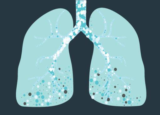 Akciğer sertleşmesi tedavisinde son yıllarda gelişmeler var