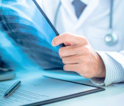 Akciğer kanseri hastaları için doğru bilgi kaynağı!..