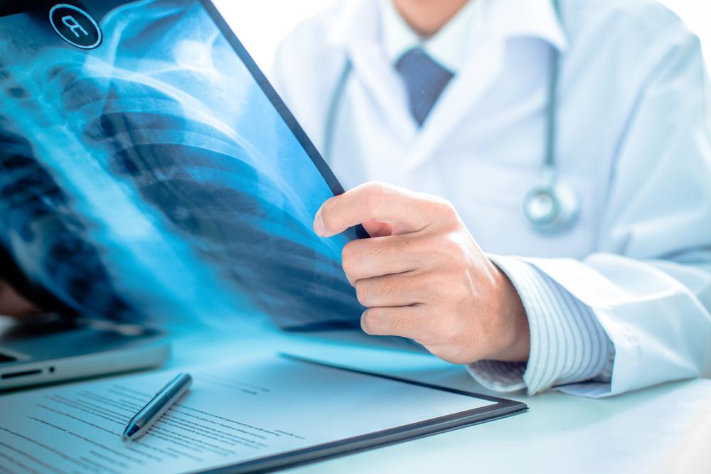 Tüm dünyada ve ülkemizde en sık görülen kanserlerin başında gelen akciğer kanseri günümüzde giderek yaygınlaşıyor. Türkiye'de tüm kanserler içinde erkeklerde 1. kadınlarda ise 5. sırada yer alan akciğer kanserinde erken tanı hayati önem taşıdığından, tüm dünyada farkındalık oluşturabilmek için toplumun dikkati her yıl Kasım ayında akciğer kanserine çekiliyor.