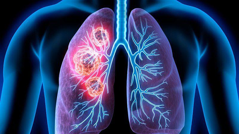 Akciğer kanseri, kanser ölümlerinde ilk sırada yer alıyor