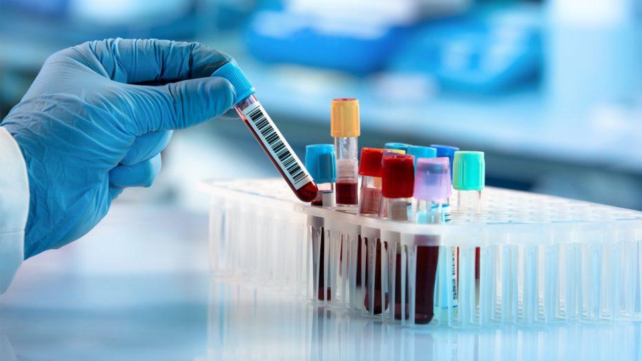 Basit bir kan testi ile pek çok hayat değişebilir, farkında olun