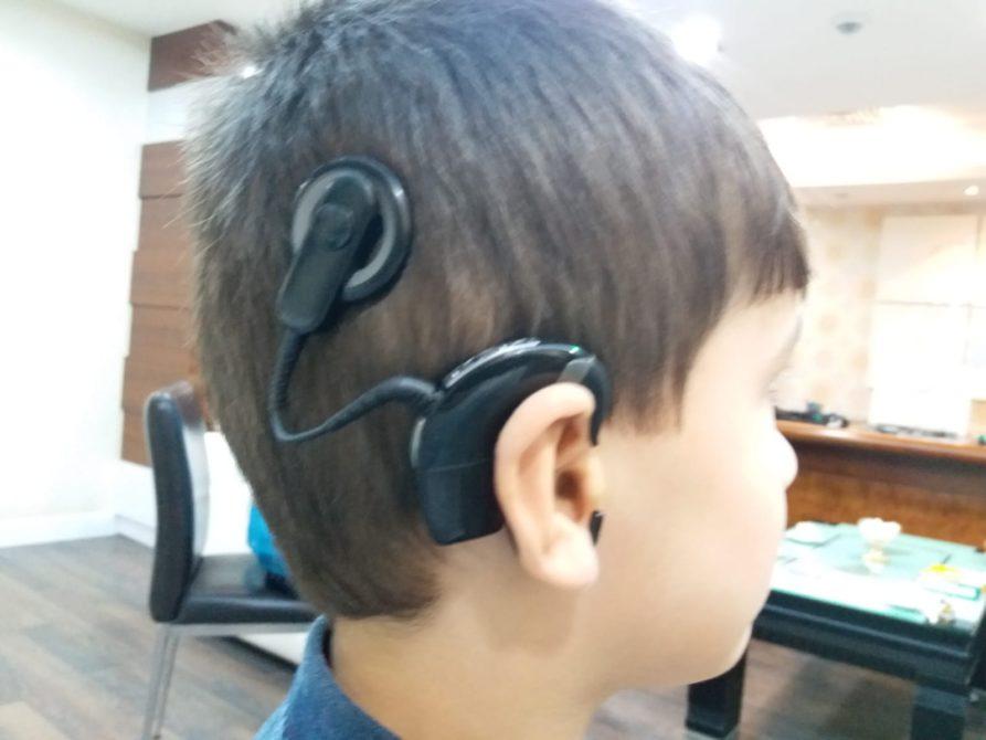 Cochlear implant ile 5 yıl sonra yeniden duymaya başladı
