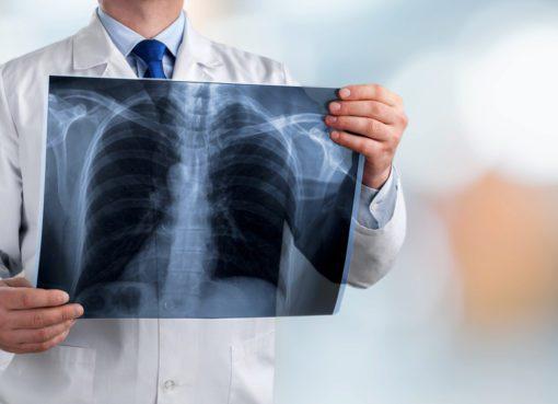 İleri evre akciğer kanserinde umutlar artıyor!