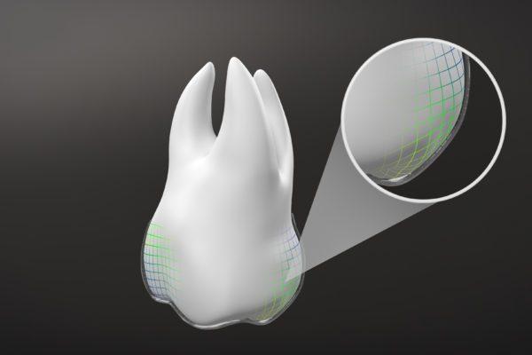 Align Technology, biyomekanikte yeniliklerin en son örneği olan SmartForce Aligner Aktivasyonu özellikli Invisalign G8'i piyasaya sunuyor...
